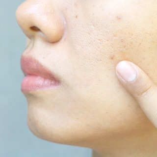【皮膚科医が回答】毛穴ケアの正解&マスク熱中症の対処法#コロナとどう暮らす