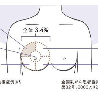 乳がん?時々おこる胸の痛みの原因は? 胸痛危険度をチェック!