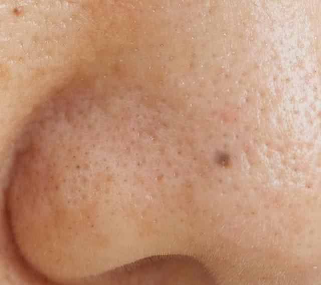 鼻 毛穴 黒い
