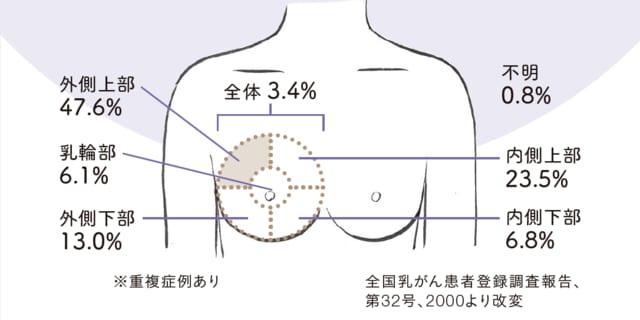左 胸 が 痛い チクチク 女性