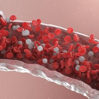 「貧血には鉄」は本当?医師が語る「かくれ貧血」との違いと予防法