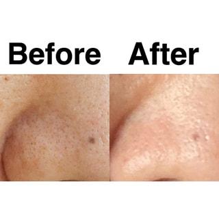 「毛穴ケア」開始から10ヶ月。40代のビフォーアフター写真と役立ちコスメ